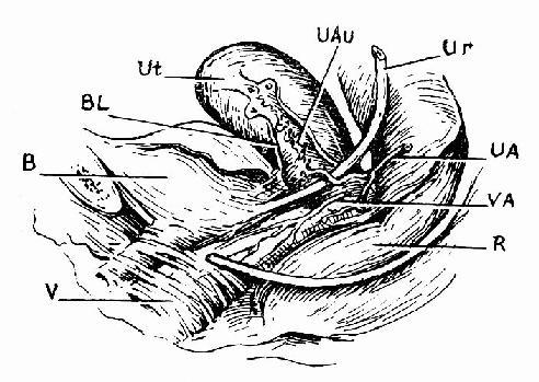 子宫局部解剖面观