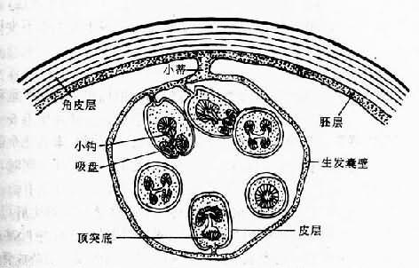 内囊及其结构的模式图