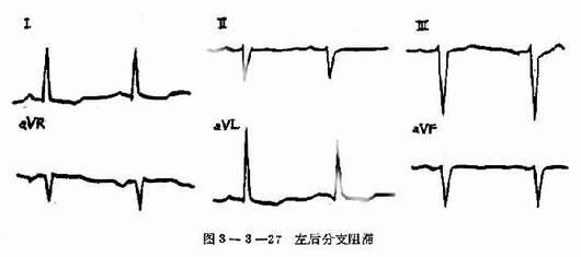 图3-3-26 左前分支阻滞 左后分支较粗,血供也丰富,不易出现传导阻滞,如发生表示病变严重,右束支如同时发生传导阻滞,很容易发展成完全性房室传导阻滞。 五、双束支传导阻滞 双束支传导阻滞是指左、右束支主干部位传导发生障碍引起的室内传导阻滞。每一侧束支传导阻滞有一、二度之分。若两侧阻滞程度不一致,必然造成许多形式的组合,出现间歇性,规则或不规则的左、右束支传导阻滞,同时伴有房室传导阻滞,下传心动的P-R间期、QRS波群规律大致如下:仅一侧束支传导延迟,出现该侧束支阻滞的图形,P-R间期正常;如两侧为程