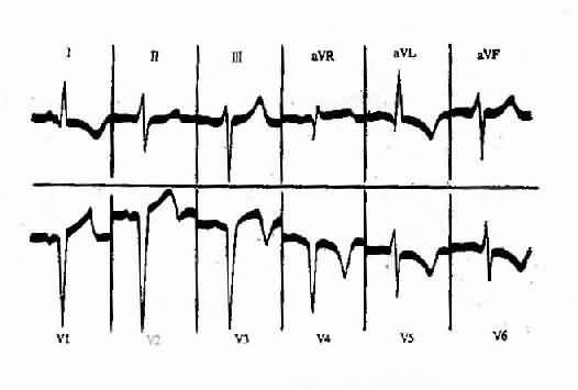 电路 电路图 电子 设计图 原理图 526_355