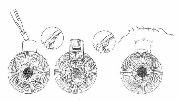 正常房角结构图
