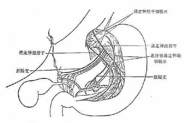 图2-50 迷走神经切断手术示意图 2.选择性迷走神经切断术 将胃左迷走神经分离清楚在肝支下切断,同样胃右迷走神经分离出腹腔支下,加以切断(图2-50),从而避免了发生其他器官功能紊乱。 为了解决胃潴留问题,则需加胃引流术,常用的引流术有:幽门成形术。在幽门处作纵行切开,横形缝合,或在幽门处沿胃大弯到十二指肠作一倒U字形切开后再胃十二指肠缝合。胃窦部或半胃切除,再胃十二指肠或胃空肠吻合。胃空肠吻合,吻合口应在胃窦部最低点以利排空。 选择性胃迷走神经切断术,是迷走神经切断术的一大改进,目前国内外广