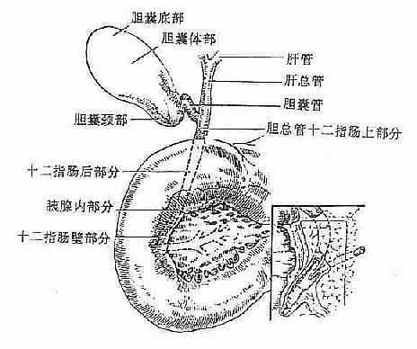 胆囊炎 胆石症