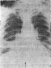 右下肺不张