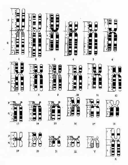 显带染色体模式图(巴黎会议,1971)