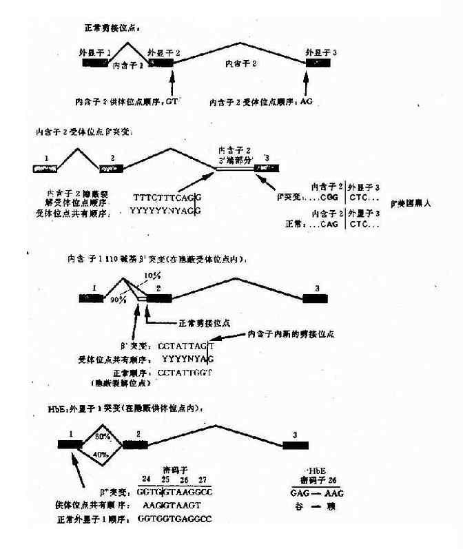 干扰正常β珠蛋白剪接的突变举例