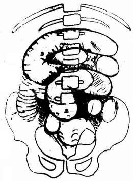 黑白色手绘放射状建筑