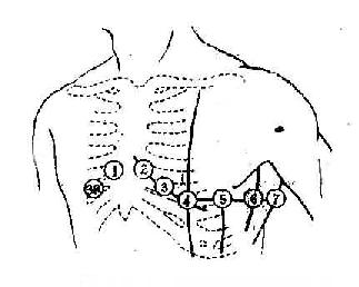 只隔着一层胸壁,因此心电图波形振幅较大 常用的几个胸导联位置见图14
