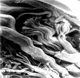 扫描电子显微镜:真皮层胶原纤维束